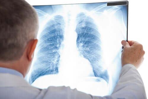 A person looking at an x-ray