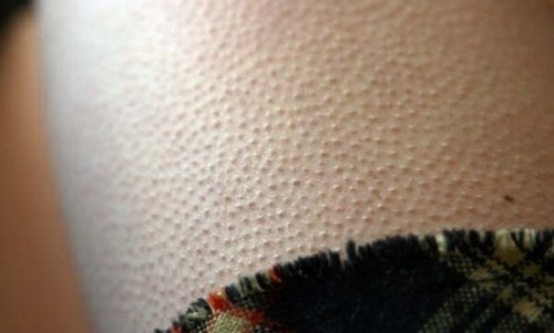 A person with goosebumps.