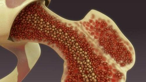 An illustration of bone marrow.