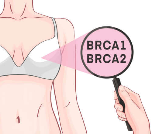BRCA-1 and BRCA-2 Genes and Breast Cancer