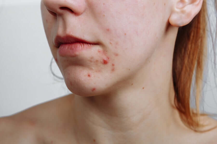 There are lots of different acne treatments because acne has lots of different causes.
