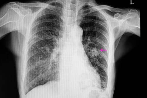 What Exactly Is a Lung Nodule?