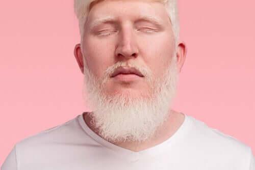 En man med albinism.