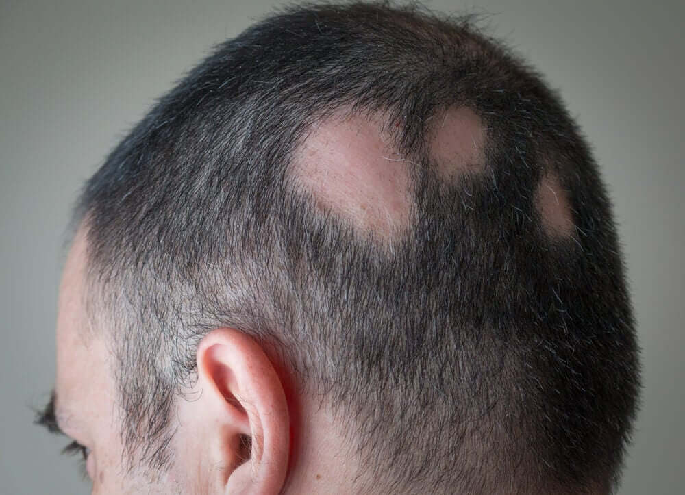 A man with alopecia.