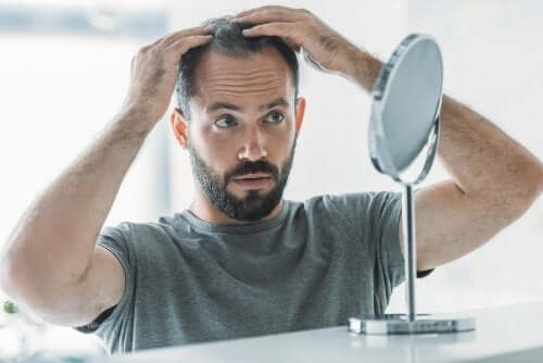 Androgenic Alopecia: Symptoms, Causes and Treatment