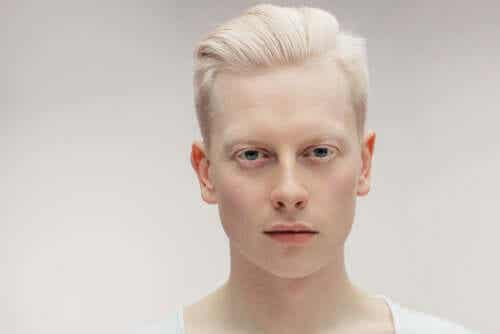 Learn All about Albinism