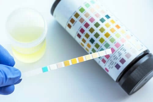 What Does a Urinalysis Detect?