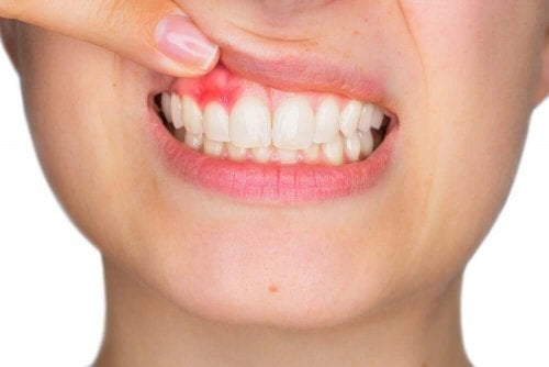 A woman with swollen gums.