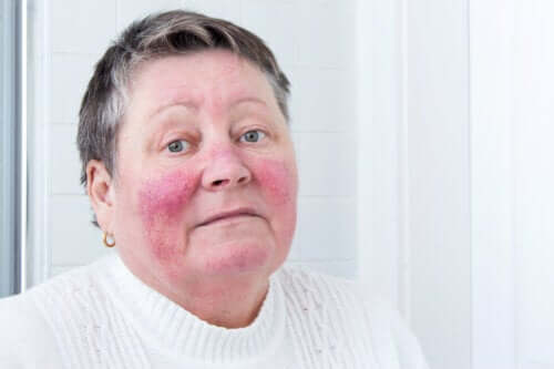 Causes and Symptoms of Rosacea