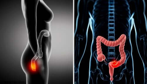 A human intestine.