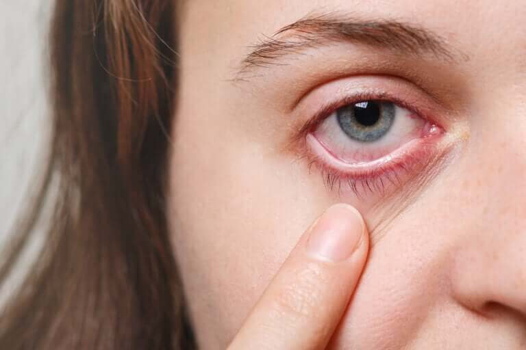 A woman pointing at her eye.