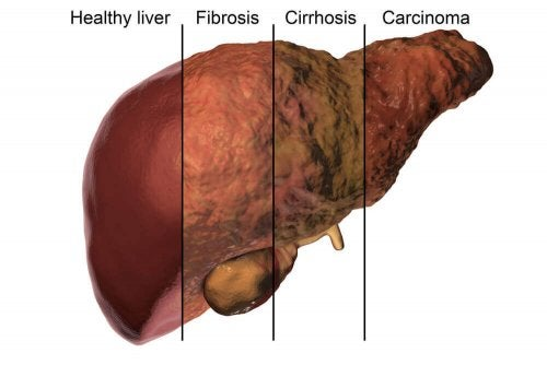 Liver damage due to alcohol and antibiotics.