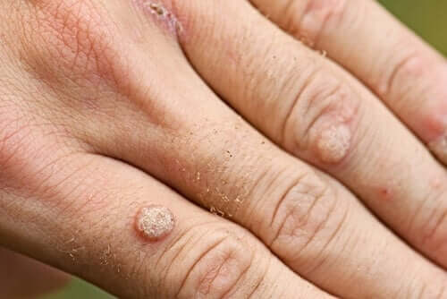 Types of Warts and Treatments