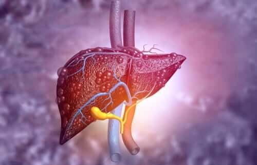 An unhealthy liver.