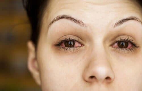 En kvinna med röda, torra ögon