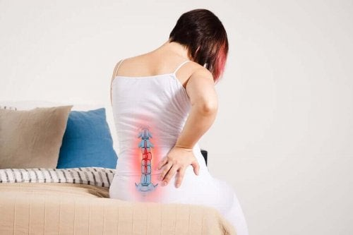 A woman with radiculopathy.