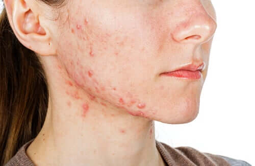 A young woman with acne.
