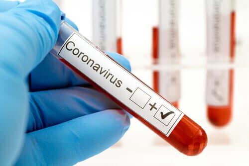 The serological test for coronavirus.