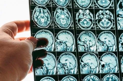 Cerebral Herniation