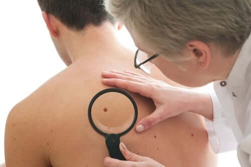 A doctor checking a mole.