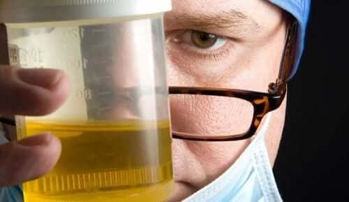 A doctor holding a urine sample.