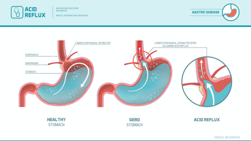 Graphic showing gastroesophageal reflux.
