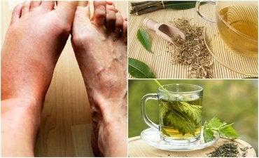 Six Herbal Teas to Lower Uric Acid Levels