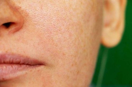 Three Natural Remedies for Melasma