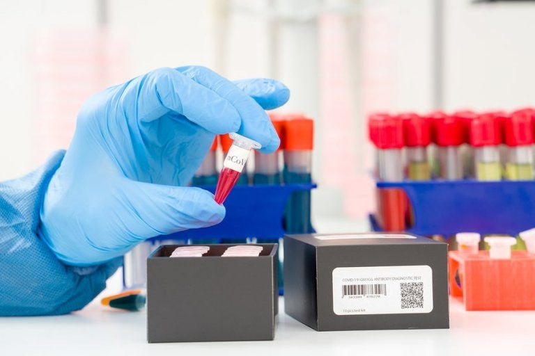 Coronavirus Detection: What's a PCR Test?