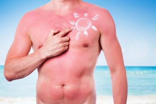 sunburn, the biggest enemy of skin health