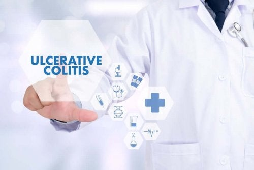 5 Tips to Avoid Episodes of Ulcerative Colitis