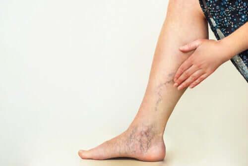 Varicose veins in women.