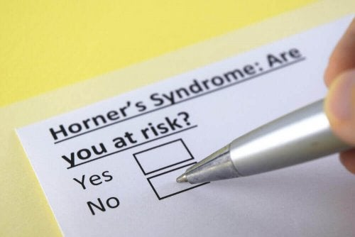 What Is Horner's Syndrome?