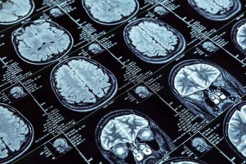 Magnetic resonance images.