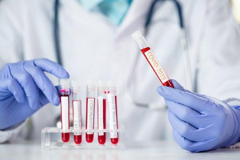 How Does Coronavirus Affect Each Blood Group?
