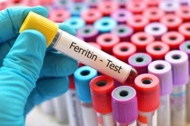 High Ferritin: How to Reduce It