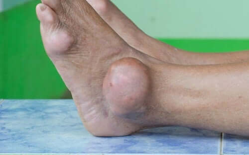Gout lumps on a foot, caused by a buildup of uric acid from the breakdown of purines.