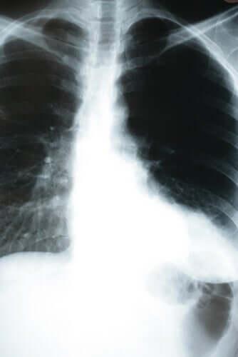 Silent pneumonia.