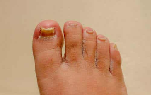 Do Remedies for Onychomycosis of the Hand and Foot Work?