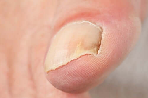A toe with onychomycosis.