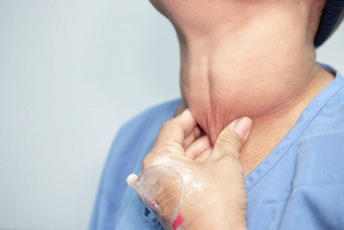 Pinching person's swollen neck from thyroid cancer.