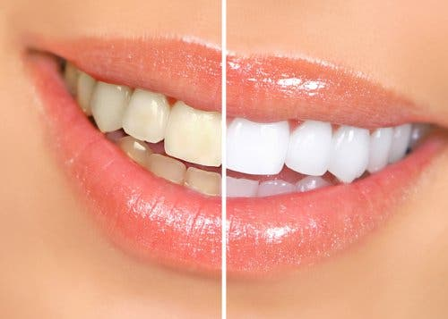 A picture showing the results of teeth whitening.
