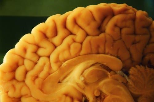 A brain autopsy.