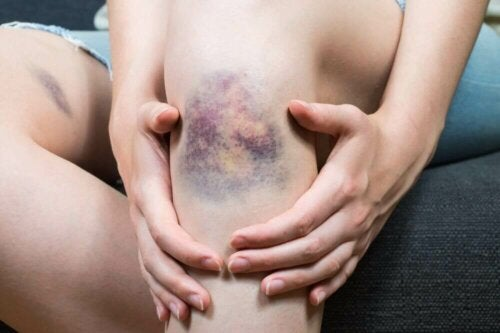What Causes Superficial Thrombophlebitis?