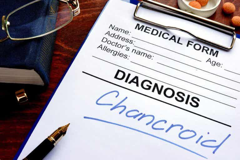 The Symptoms and Treatment of Chancroid