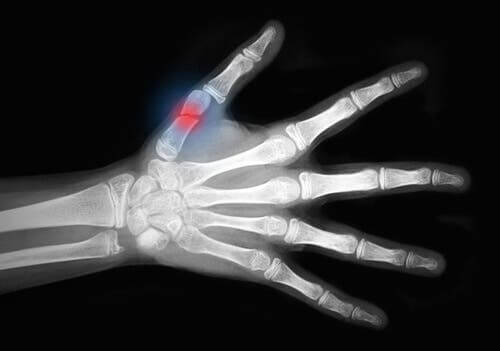 A hand X-ray showing a fracture.