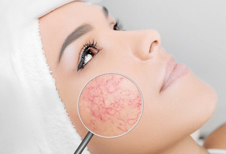 6 Things You Should Avoid if You Have Rosacea