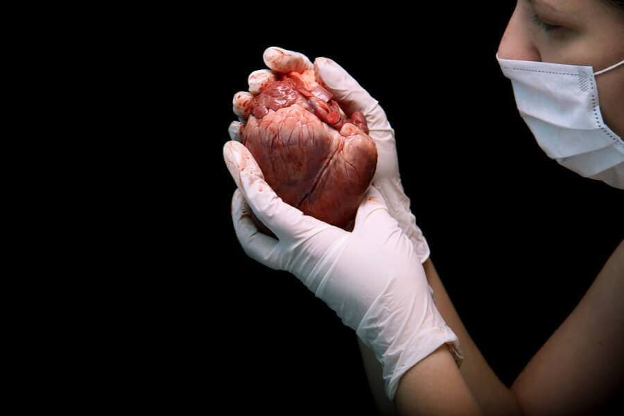 What Does a Heart Transplant Consist Of?