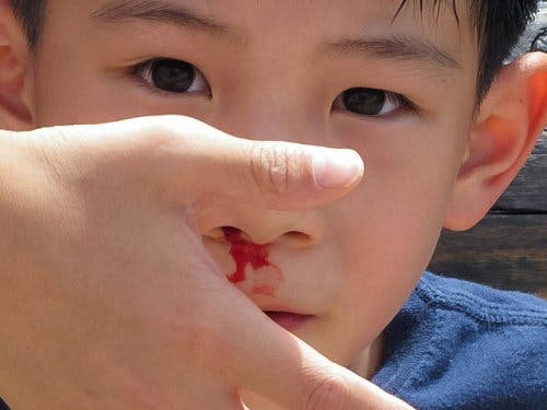 Little boy with a nosebleed.