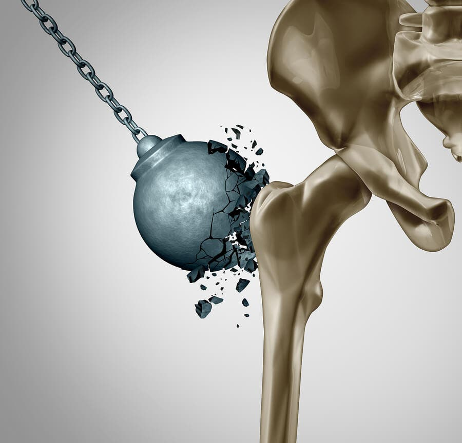 Reducing the Damage of Osteoporosis After Menopause